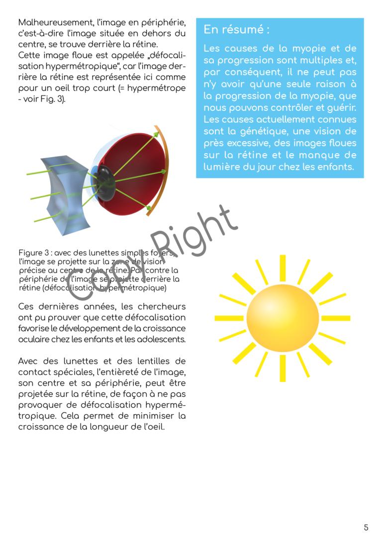 Broschuere_Myopie_FR-CH-A5-v3a7